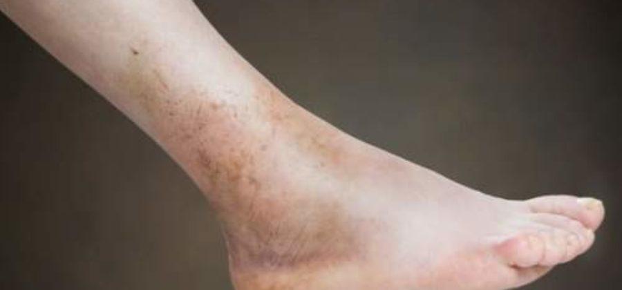 Как снять отек с голеностопа после травмы народные методы?