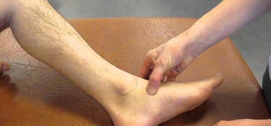 Перелом лодыжки со смещением нужна ли операция