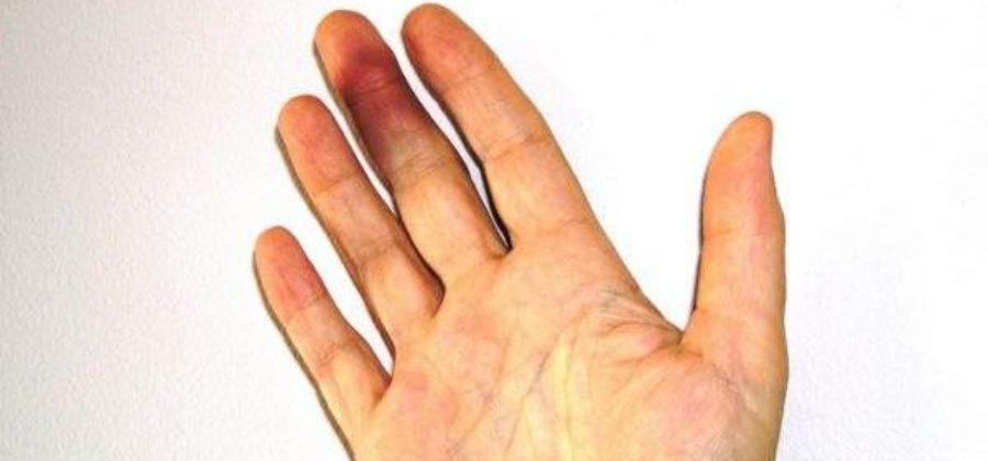 При ушибе пальца руки он посинел и опух что делать