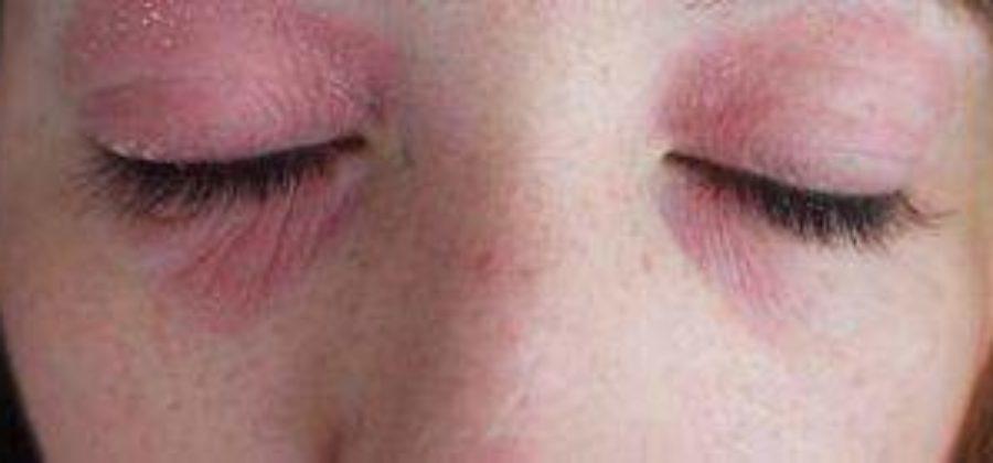 Вокруг глаз покраснение и шелушение и отеки