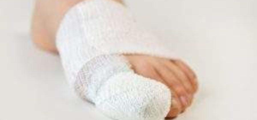 Как лечить ушиб пальца ноги с отеком в домашних условиях?