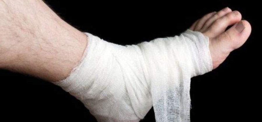 Как снять отек с ноги после прокола гвоздем?