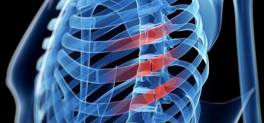Перелом ребер – симптомы, лечение, боли, первая помощь