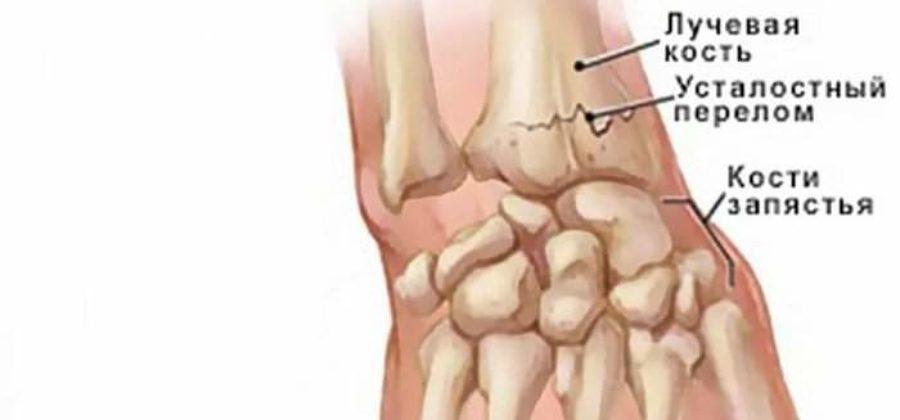 Разработка лучезапястного сустава после перелома со смещением