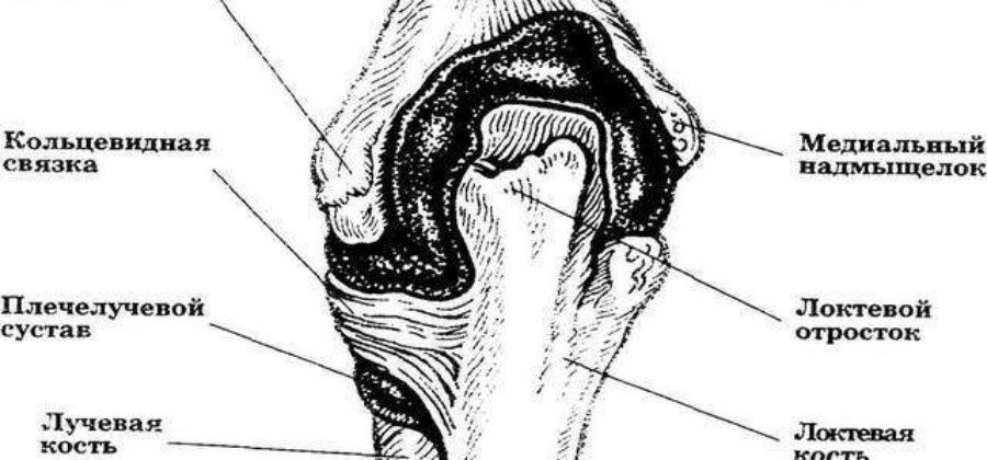 Вывих лучевой кости в локтевом суставе