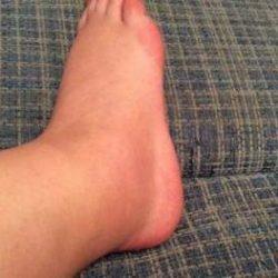 Отекла и болит нога в щиколотке что делать