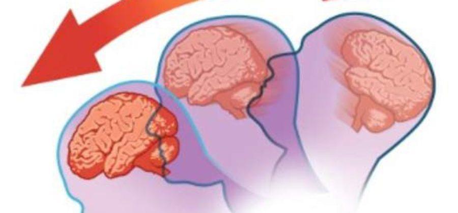 Оказание первой помощи при сотрясении и ушибе головы