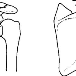 Перелом на уровне плечевого пояса и плеча