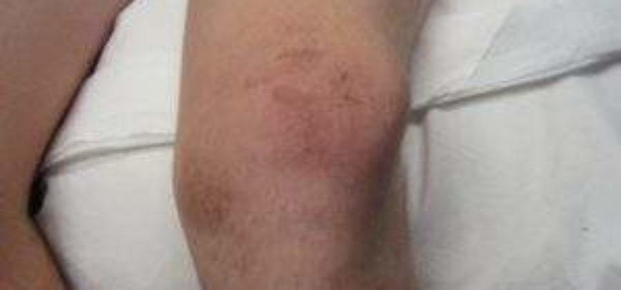 Что делать при сильном ушибе коленной чашечки?