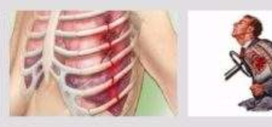 Ушиб легкого после тупой травмы грудной клетки