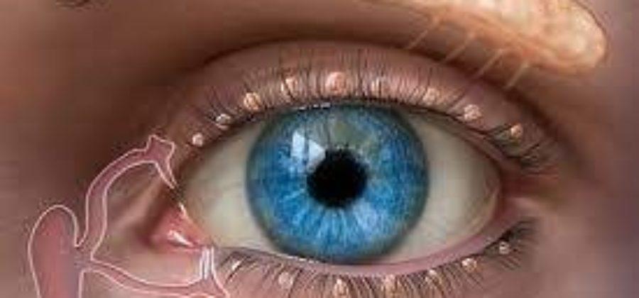 Как быстро снять отеки с глаз если проплакала всю ночь?