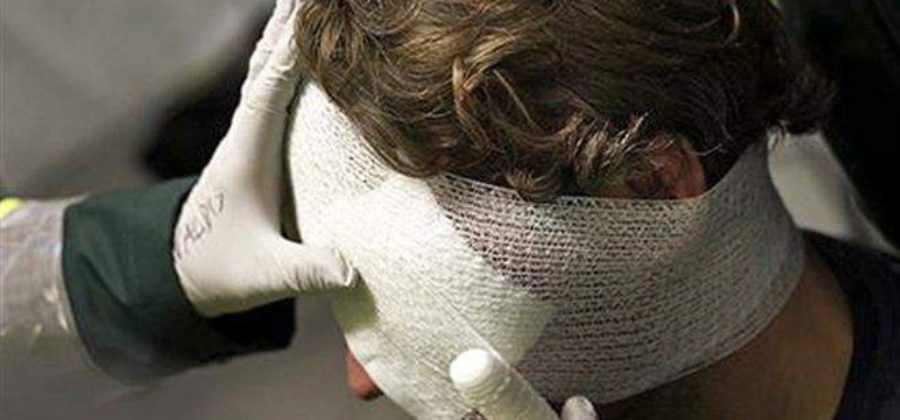 Оказание первой медицинской помощи при ушибе головного мозга