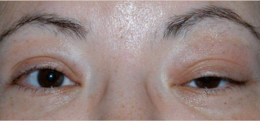 Как снять отек с глаза после удара над глазом?