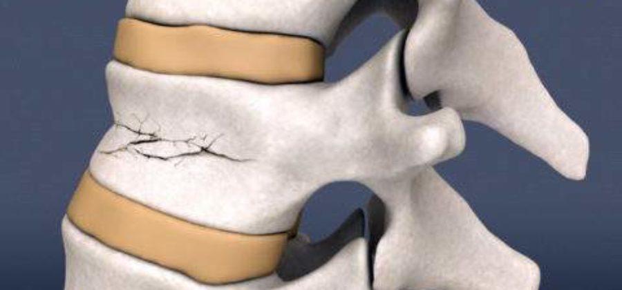 Сколько стоит операция на позвоночник при переломе
