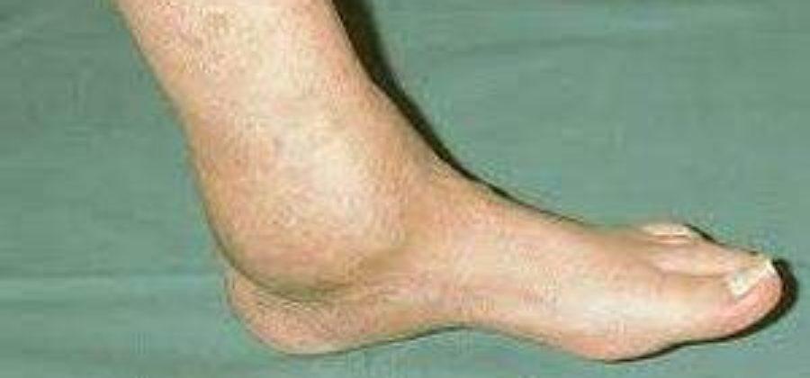 Боль и отек в голеностопном суставе после бега