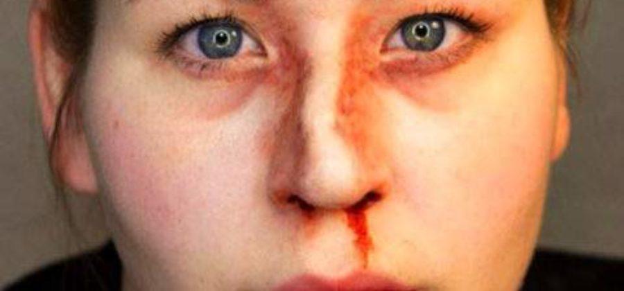 После перелома носа не дышит одна ноздря