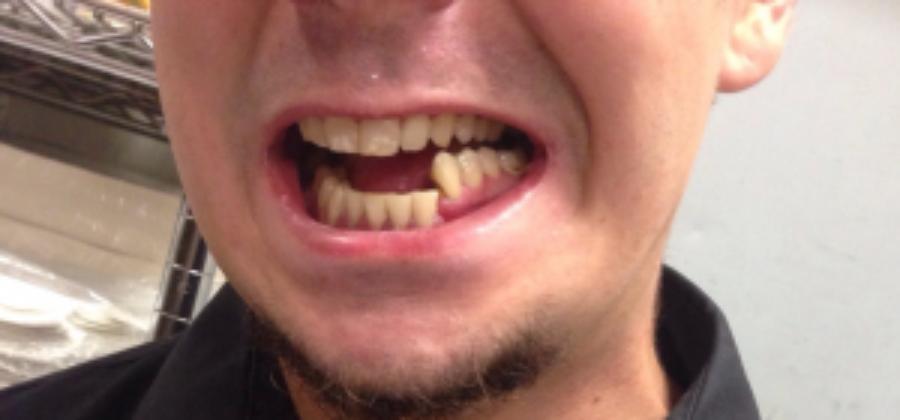 Травматический открытый перелом нижней челюсти со смещением