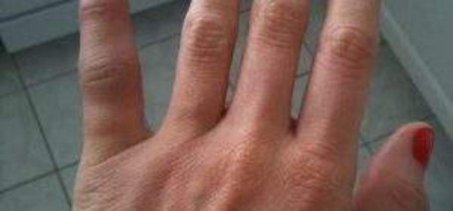 Не сгибается указательный палец после вывиха