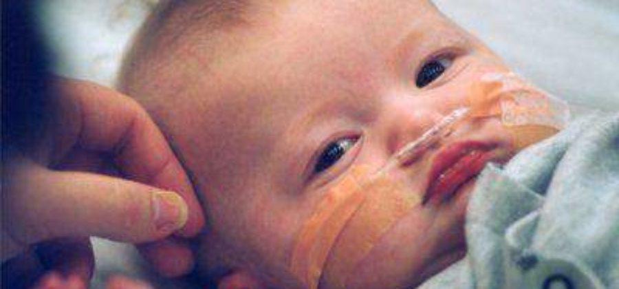 Отек головного мозга что это и какие последствия у ребенка