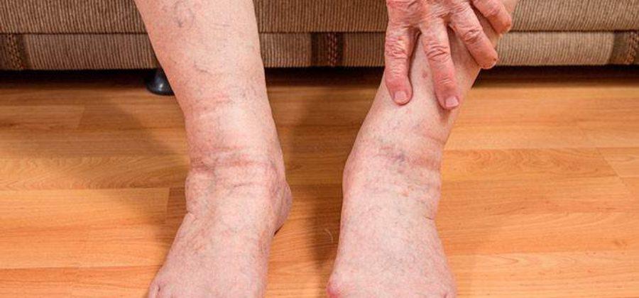 Отекли ноги у пожилого человека что делать в домашних условиях