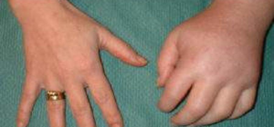 Лфк при переломе запястья руки синдром зудека