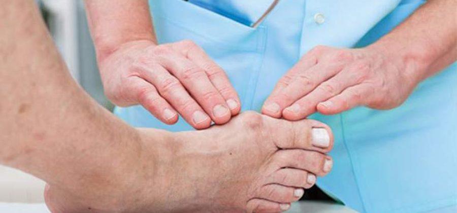 Воспаление косточки на ноге и отек поверхности стопы у мужчины