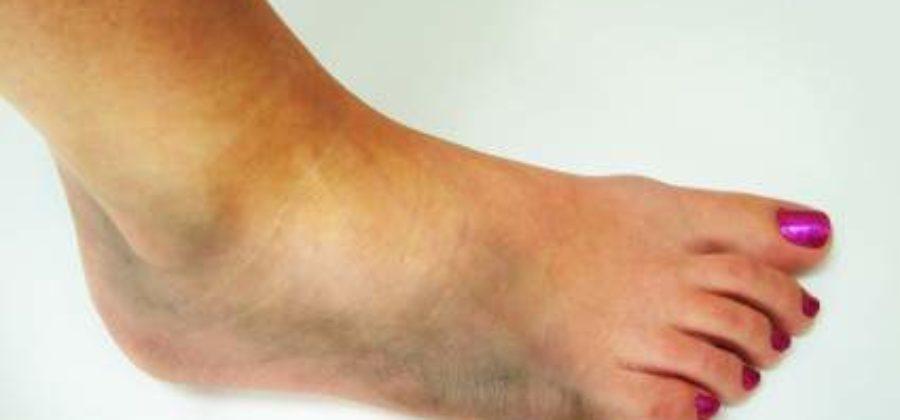 Дают ли больничный при сильном ушибе пальца ноги