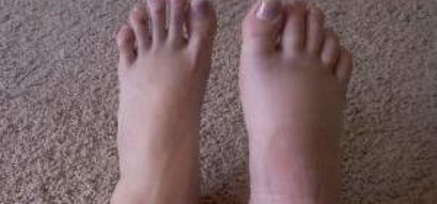 Перелом ноги со смещением у ребенка лечение