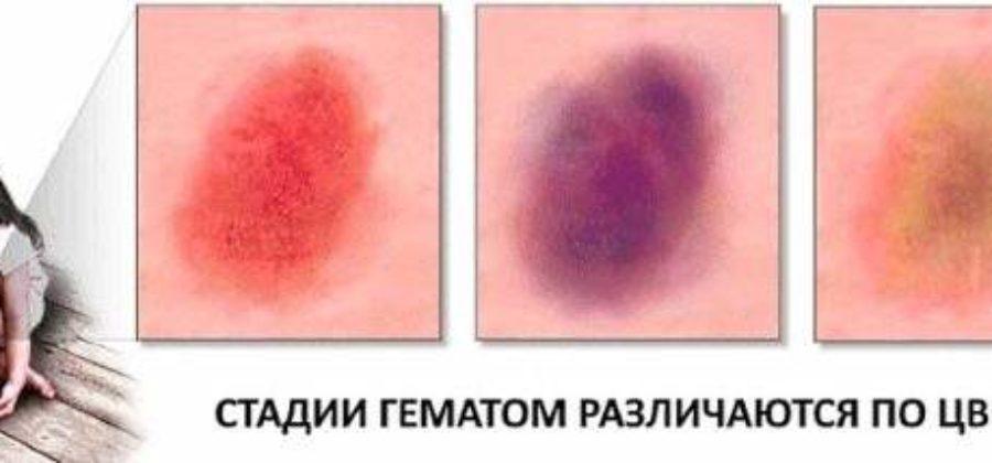 Народные средства от синяков гематом и ушибов на глазах