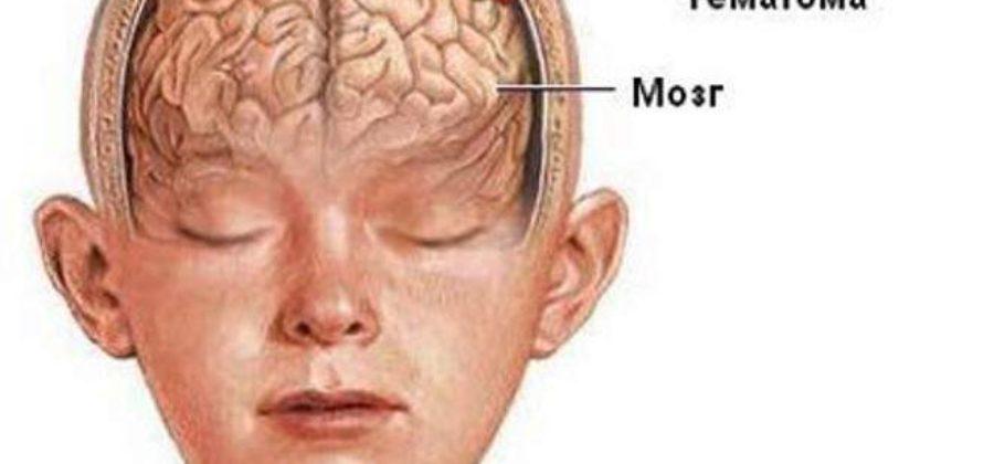 Ушиб головного мозга 1 степени что это