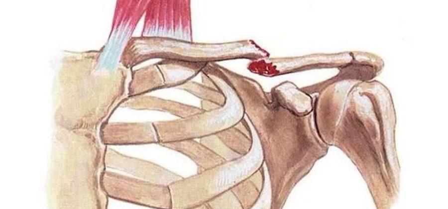 Перелом ключицы – как лечится