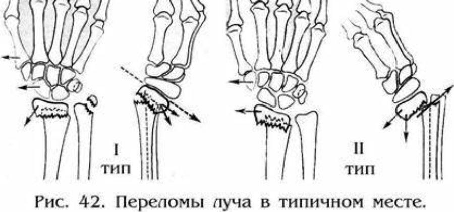 Ротационные смещения при переломе костей предплечья зависят