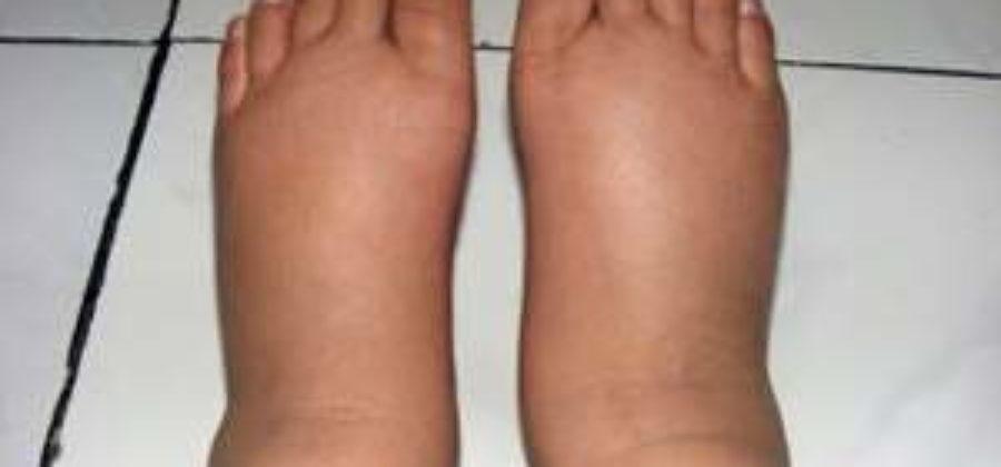Как избавиться от отеков на ногах после родов?
