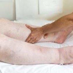 Отек ног при сердечной недостаточности чем заканчивается