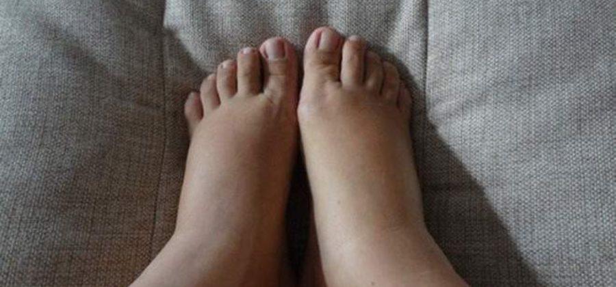 Как убрать отеки после родов на ногах причина и лечение?