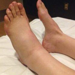 Отек стопы ноги и уплотнение на внешней части стопы