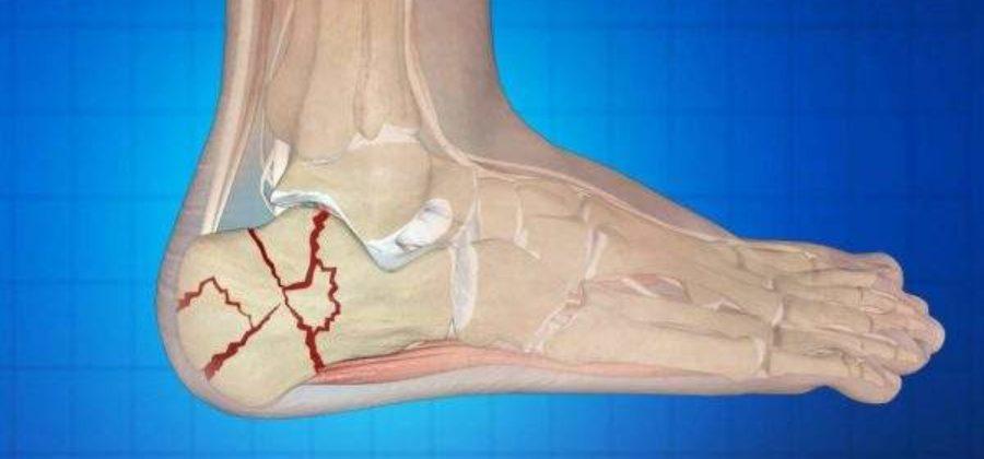 Что нужно делать при переломе пяточной кости?