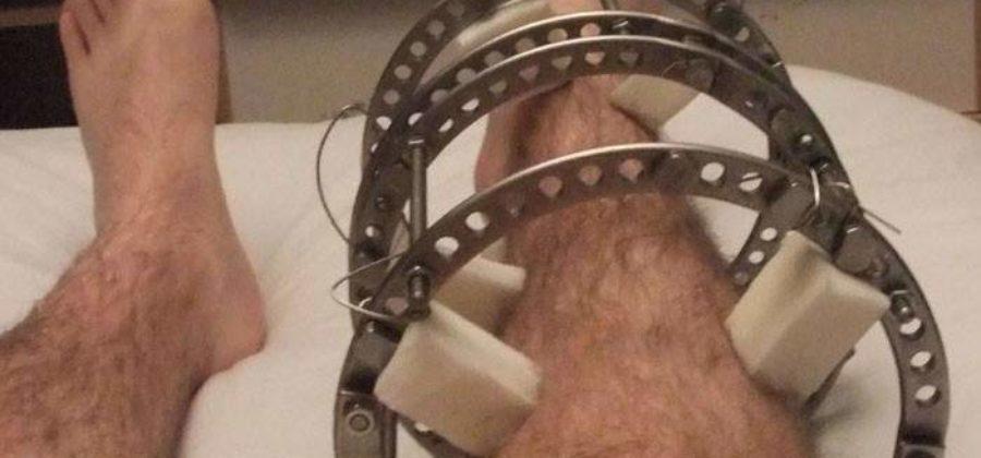 Остеосинтез аппаратом илизарова при переломах костей голени