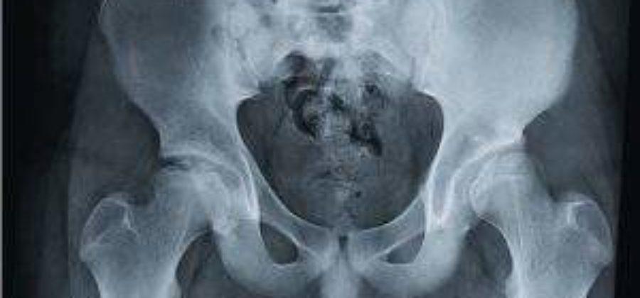 Врожденный вывих тазобедренных суставов и роды