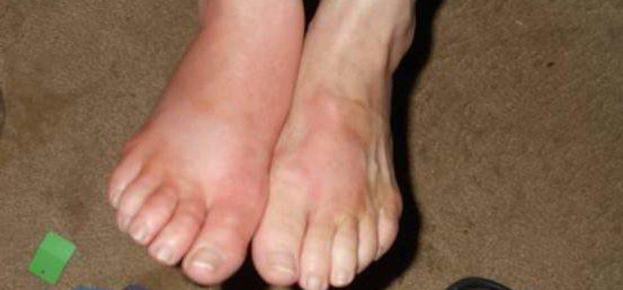 Нарушение лимфотока отек на одной или обеих ногах лечение