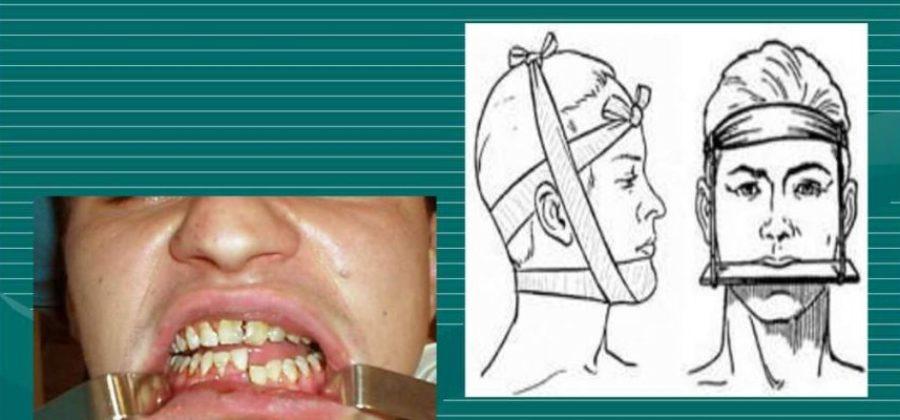 Для иммобилизации переломов беззубых челюстей применяется шина