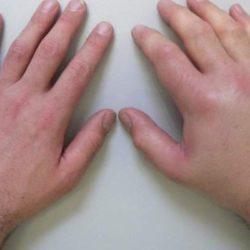Отек руки после мастэктомии лечение в домашних условиях