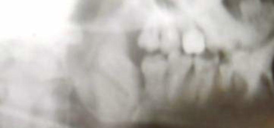 Признаки перелома челюсти при удалении зуба мудрости