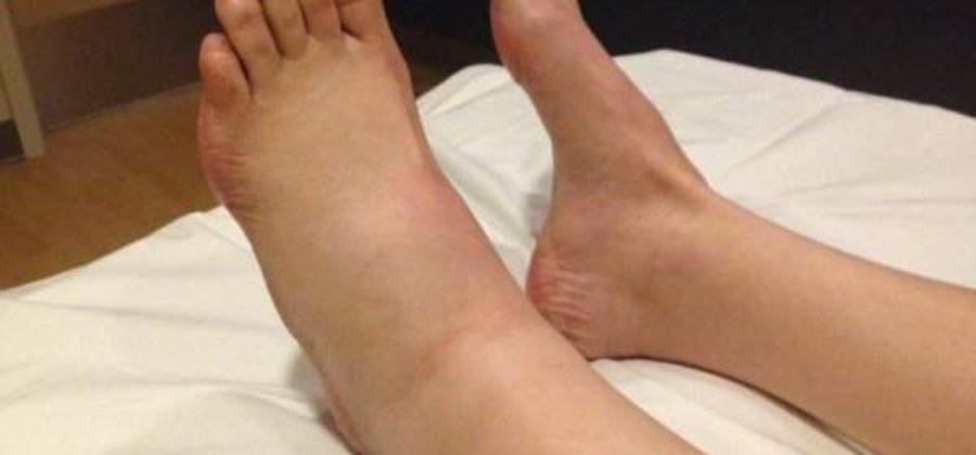 Ощущение что ноги стопы отекли и ломота что это