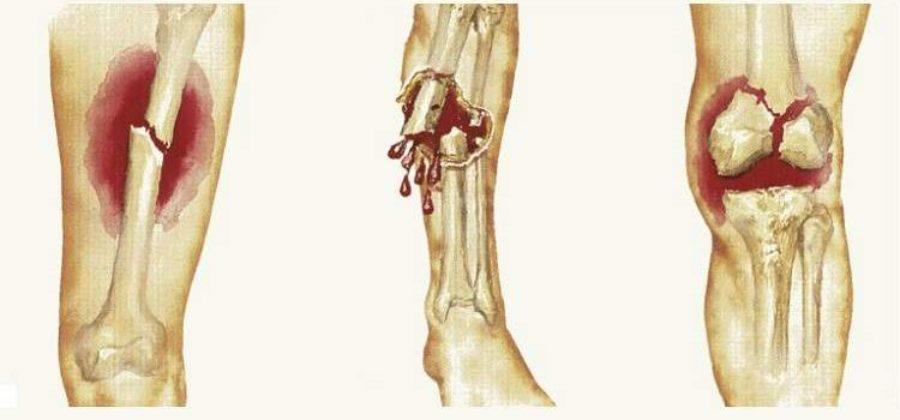 Вопросы по оказанию первой помощи при переломах