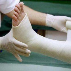 Что делать при переломе ноги у человека?