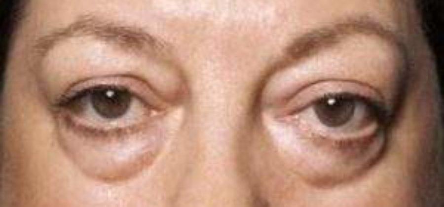О чем говорят отеки под глазами у женщин