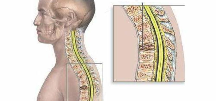 Реабилитация пациентов с переломом грудного отдела позвоночника