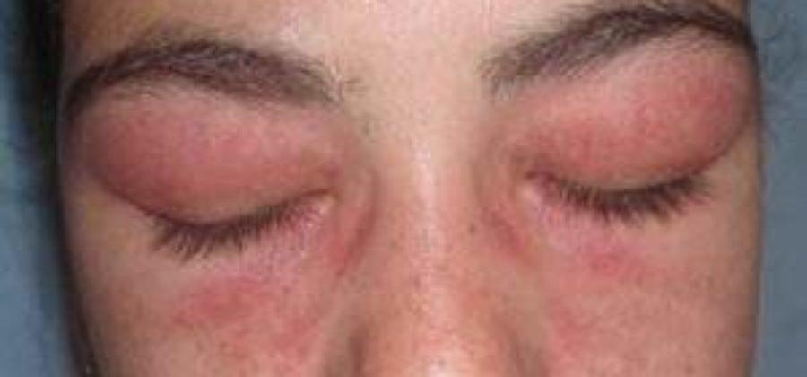 От чего бывают отеки на глазах верхнее веко
