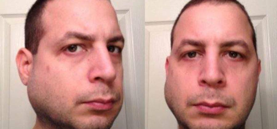 Смещение верхней челюсти при суборбитальном переломе происходит